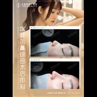 广州鼻综合整形医生