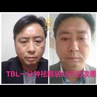 TBL國際