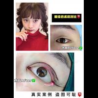 上海专业网红整形