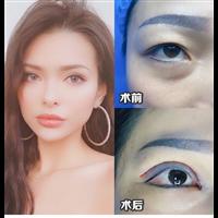上海肋骨隆鼻整形