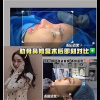 上海专业整形修复