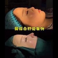 北京眼整形专家