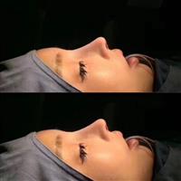 北京眼整形修復專家