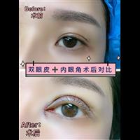 北京肋骨鼻修复专家