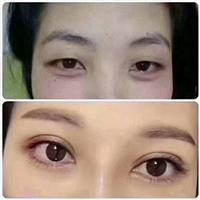 深圳眼综合修复专家