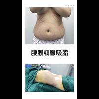 上海网红修复整形