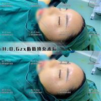 上海脂肪填充整形医院