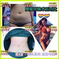 上海脂肪填充整形专家