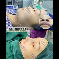 上海高级脸整形
