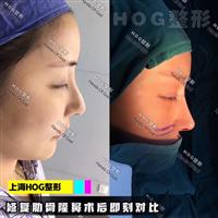 上海高级脸修复