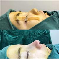 广州专业肋骨鼻整形