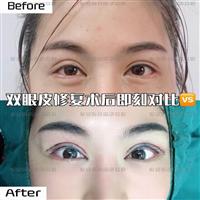 广州MJ国际网红整形医院