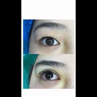 广州MJ国际网红整形
