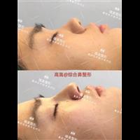 安徽鼻综合整形专家高嵩医生