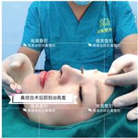安徽鼻综合整形修复专家高嵩医生