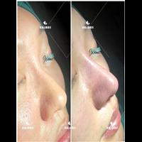 安徽鼻综合整形专家