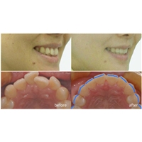 牙齒矯正中心
