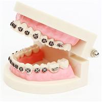 柳州专业矫正牙齿
