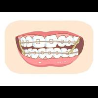 柳州矫正牙齿