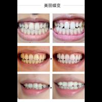 柳州专业洗牙