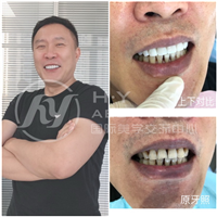 广州美牙培训