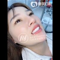 广州冰瓷美牙培训