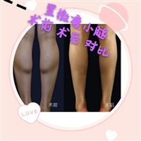上海显微瘦小腿