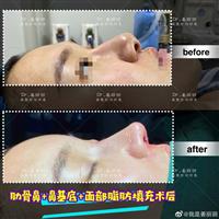 上海鼻整形专家姜丽丽