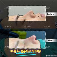 上海肋骨鼻整形
