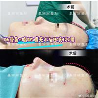 上海肋骨鼻整形医生推荐