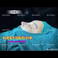上海做肋骨鼻整形