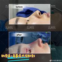 上海做肋骨鼻整形哪家好