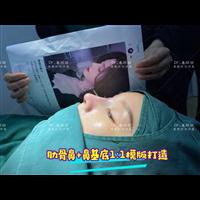 上海肋骨鼻整形专家姜丽丽