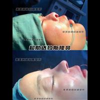徐州肋骨鼻整形