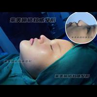 江苏鼻综合整形