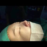 新疆鼻综合整形