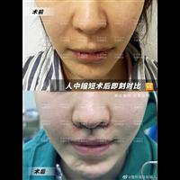 肋骨鼻综合