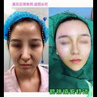 新疆自体脂肪移植专家