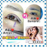 新疆眼部整形修复专家