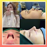 新疆鼻整形专家