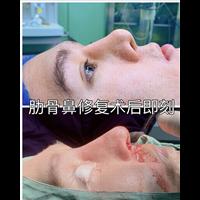 新疆鼻整形修复专家