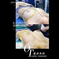 广州脂肪隆胸失败修复
