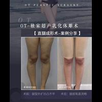 广州做抽脂修复的医生