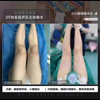 广州抽脂失败修复