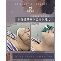 广州抽脂修复专家