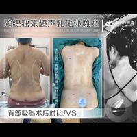 广州抽脂整形专家