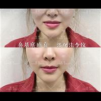 鼻基底填充淡化法令纹