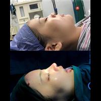 上海美赋张建平肋骨鼻整形