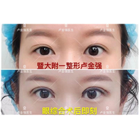 广州暨大卢金强医生